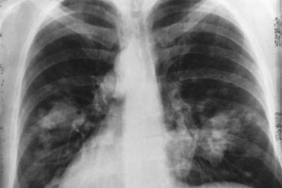 وجود تومور سرطانی در هر دو قسمت ریه چپ و راست