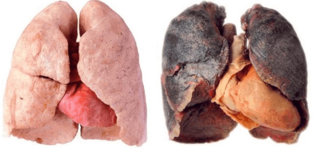 تأثیر مخرب سیگار بر ریه - فوق تخصص ریه در تهران دکتر انیس فرد موسوی