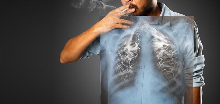 اثر دود سیگار بر ریه -فوق تخصص ریه