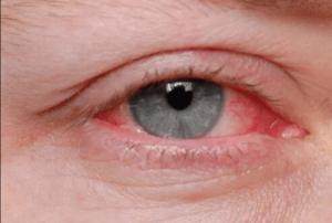 نشانه های آلرژی - دکتر انیس فرد موسوی
