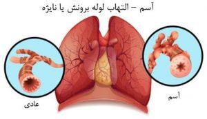 آسم و التهاب لوله برونش