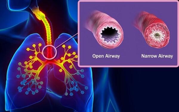 اثر آسم بر راه های هوایی