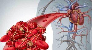 ایجاد لخته خون در بیماری کوید-19