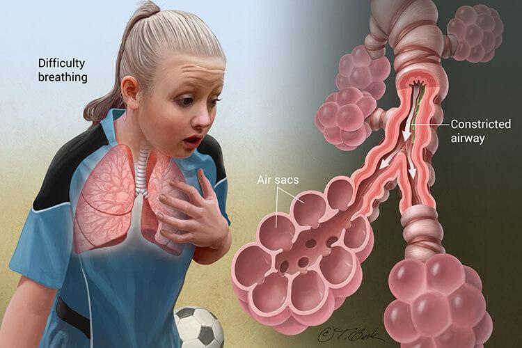 آسم و سختی تنفس