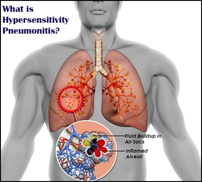 تأثیر بیماری التهاب ریه حساس بر روی کیسههای هوایی