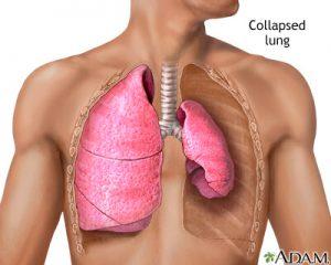 روی هم خوابیدن ریه یا فرو ریختن ریه یا Collapsed Lung