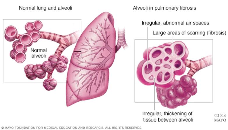 فیبروز ریوی Pulmonary fibrosis