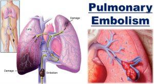 Pulmonary-embolism، امبولی ریه